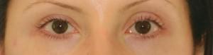 eyelinerbefore